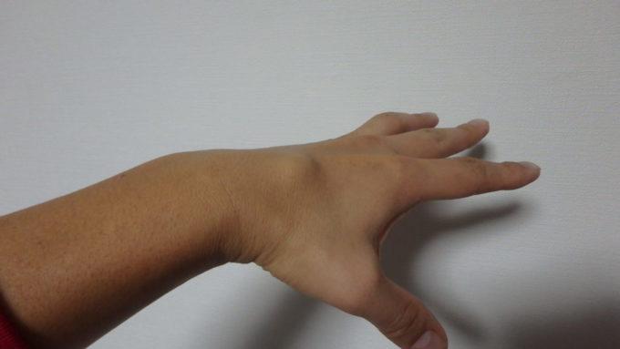 悪性リンパ腫戦記 その5~抗がん剤の副作用