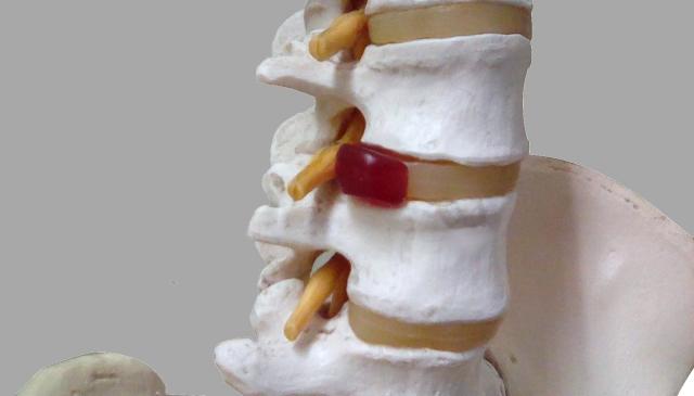 腰椎椎間板ヘルニア戦記①ランニング
