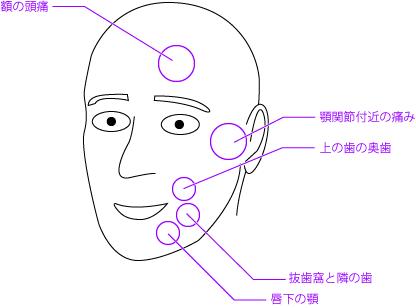 悪性リンパ腫戦記 その1 ~謎の首の腫れ