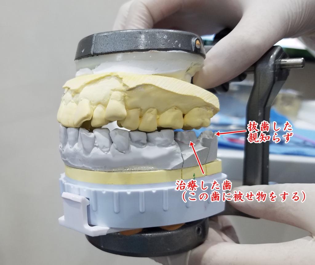 虫歯戦記③ 虫歯治療再開!術後の痛み~被せ物まで