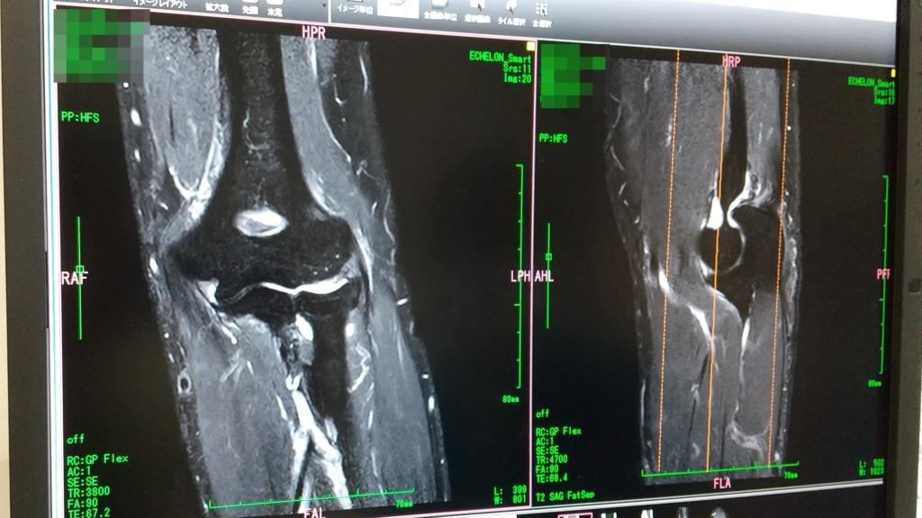 左肘損傷~MRIを撮って判明したこと
